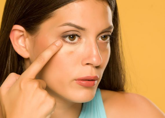 Cover Dark Circles Under Eyes Tips