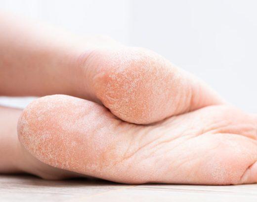 Cracked Heel Heal Tips