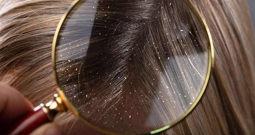 Your Guide to Treating Dandruff