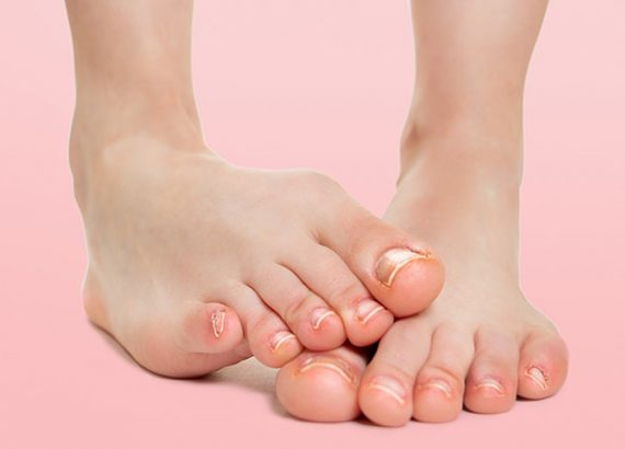 Preventing Treating Nail Problems Tips