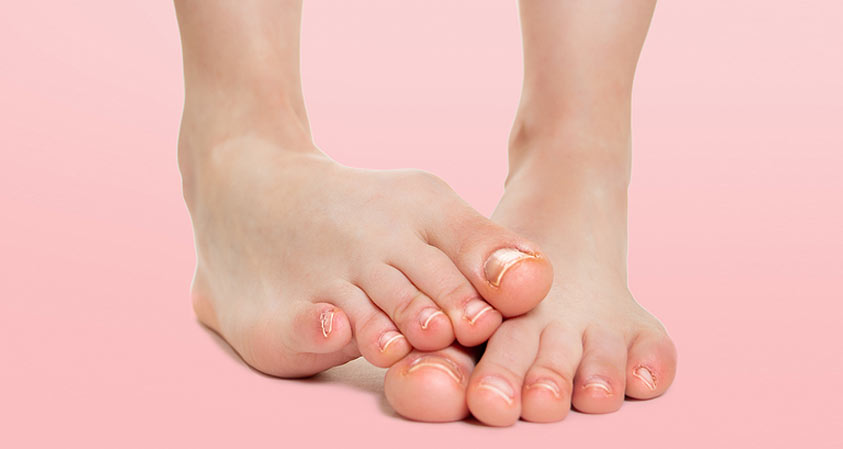 Tips on Preventing & Treating Nail Problems