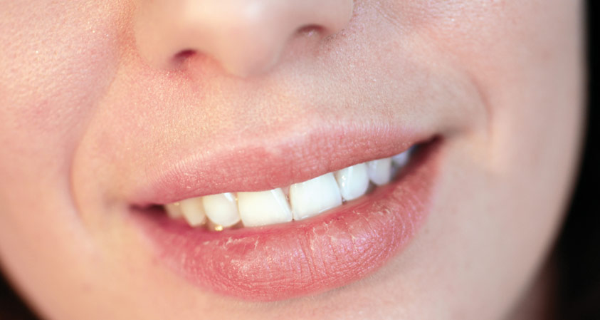 Get Rid of Dry Lips This Winter!